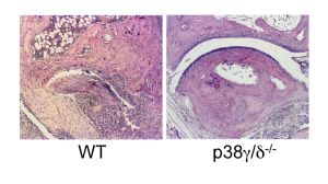 In an arthritis model, mice that lack p38γ/δ are protected against joint damage.